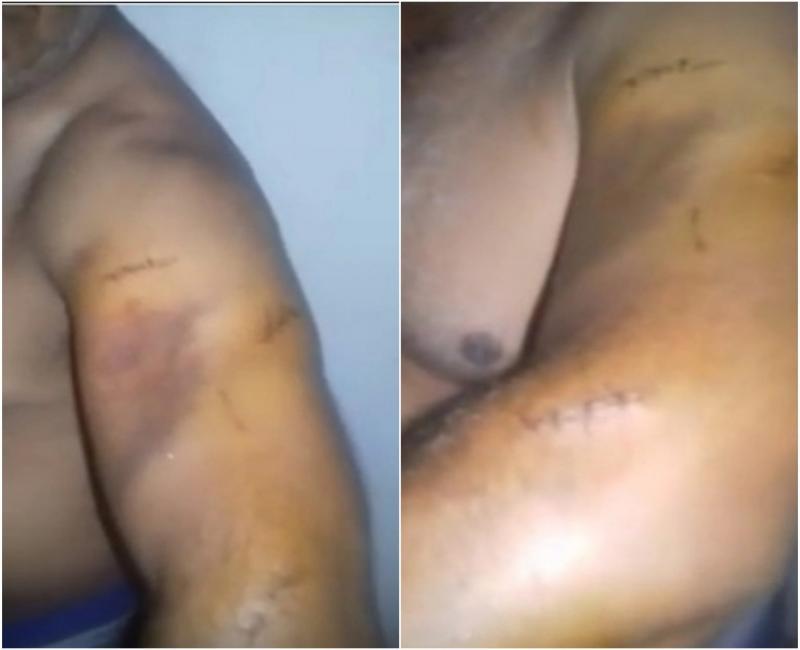 Mototaxista é esfaqueado durante assalto em Teresina