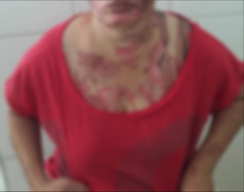 Jovem é queimada por companheiro em cidade do Piauí; Suspeito continua solto