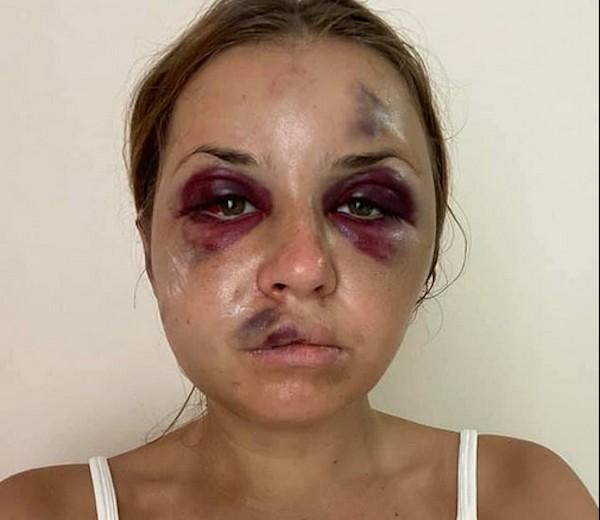 Apresentadora de TV é atacada por homem em trem noturno e fica com o rosto machucado