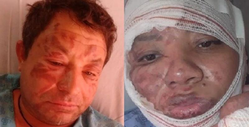 Cantor sertanejo e esposa sofrem queimaduras graves em todo o corpo após explosão