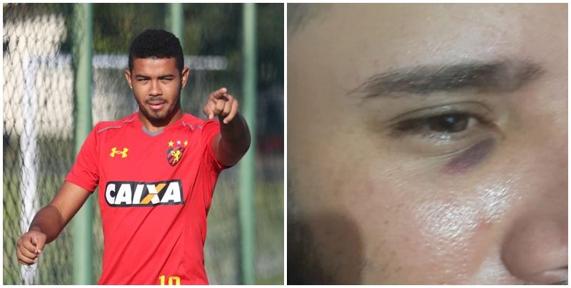 Atacante Juninho ex-Sport é acusado de agressão por empresário em Amarante