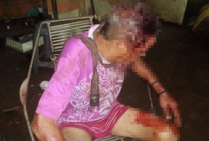 Idoso é espancado e amarrado durante assalto em residência no Piauí
