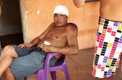 Homem golpeia o irmão com golpe de facão durante bebedeira no Piauí